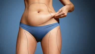 interventie-chirurgicala-liposuctie