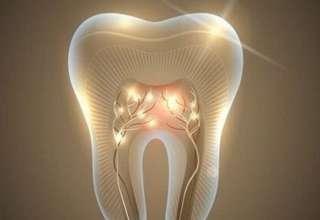 dinte